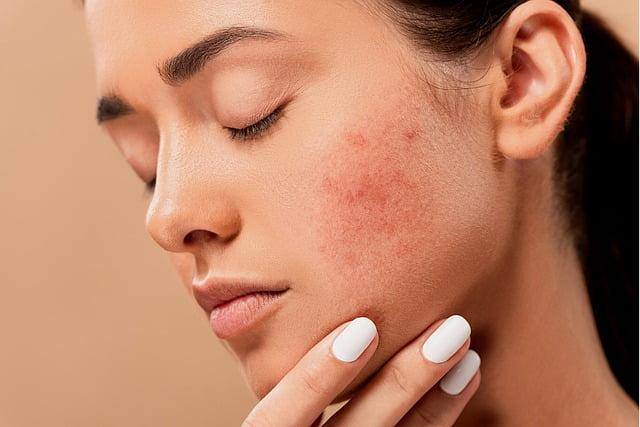 Pimple Issues- Makeup Revolution